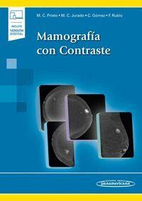 MAMOGRAFIA CON CONTRASTE
