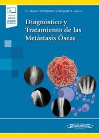 DIAGNOSTICO Y TRATAMIENTO DE LAS METASTASIS OSEAS (INCLUYE VERSION DIGITAL)