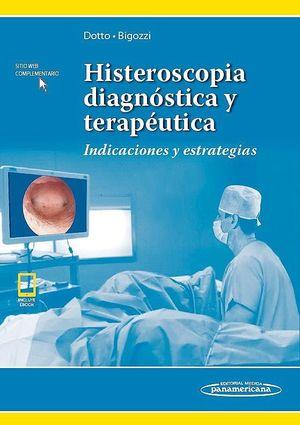 HISTEROSCOPIA DIAGNOSTICA Y TERAPEUTICA.